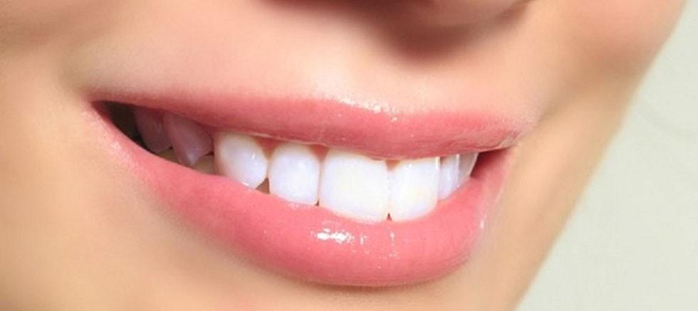 Diş Minesi Onarımına Uzman Dokunuş